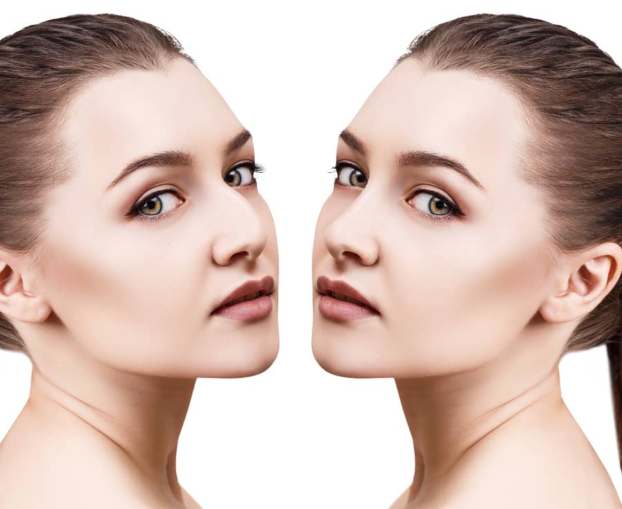 Rhinoplasty, What Are the Most Common Types of Rhinoplasty?