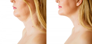 how fast does kybella work